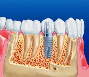 implantaciya-zubov-1548414