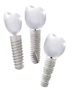 implanty_zubov-1559014