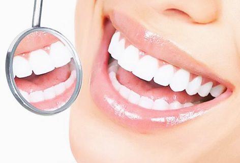 otbelivanie-zubov-v-harkove