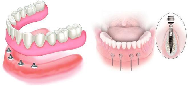 polnye-zubnye-protezy-6733187