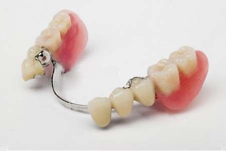 protezy3-3268543