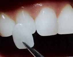 protezy4-1273403