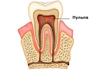 pulpa-zuba